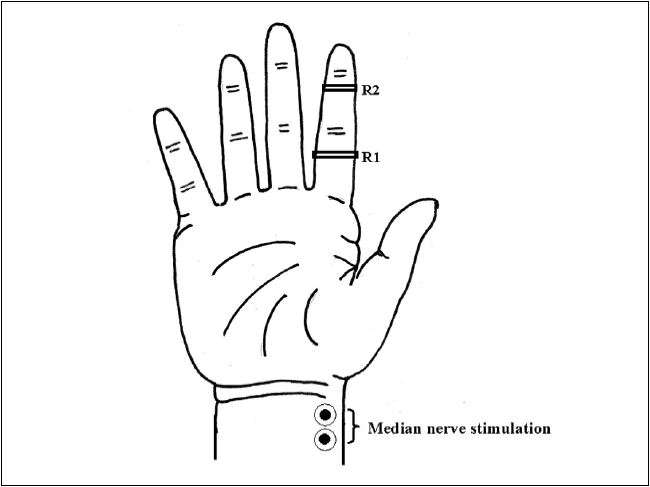 Electrode placement for antidromic recording of median