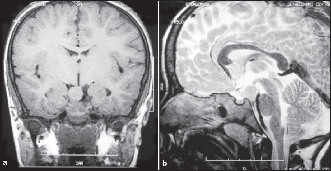 Figure 2: (a) and (b) Coronal T1 and Sagittal T2 magnetic resonance imaging of brain showing well-defined isointense lobulated lesion (hypothalamic hamartoma) lying between pituitary stalk and mamillary body