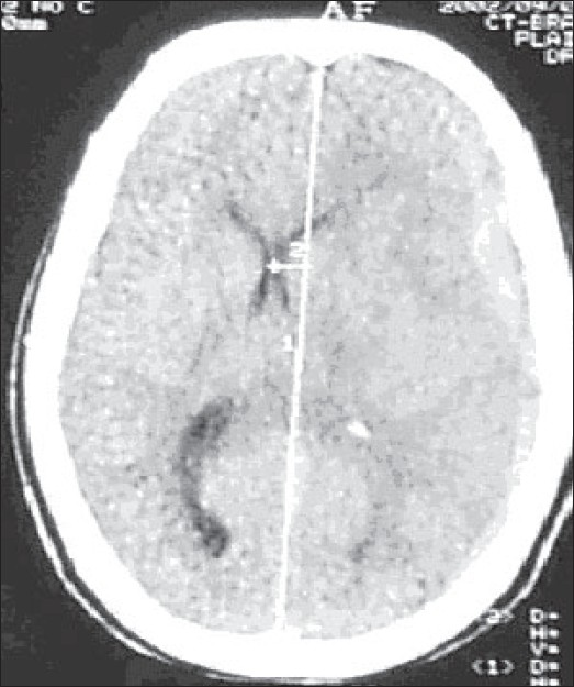 Figure 1: CT scan of the brain showing acute subdural hemorrhage on the left frontoparietal region with associated midline shift
