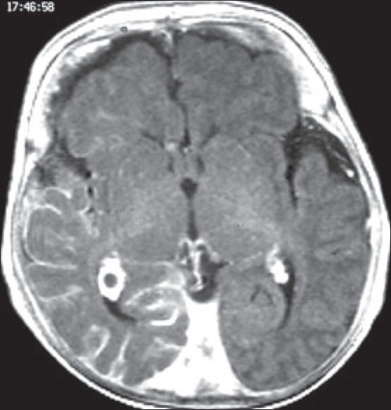 Figure 2: Axial T1 weighted MRI with gadolinium shows enhancement of the right pial angioma, enlarged choroid plexus and right cortical atrophy