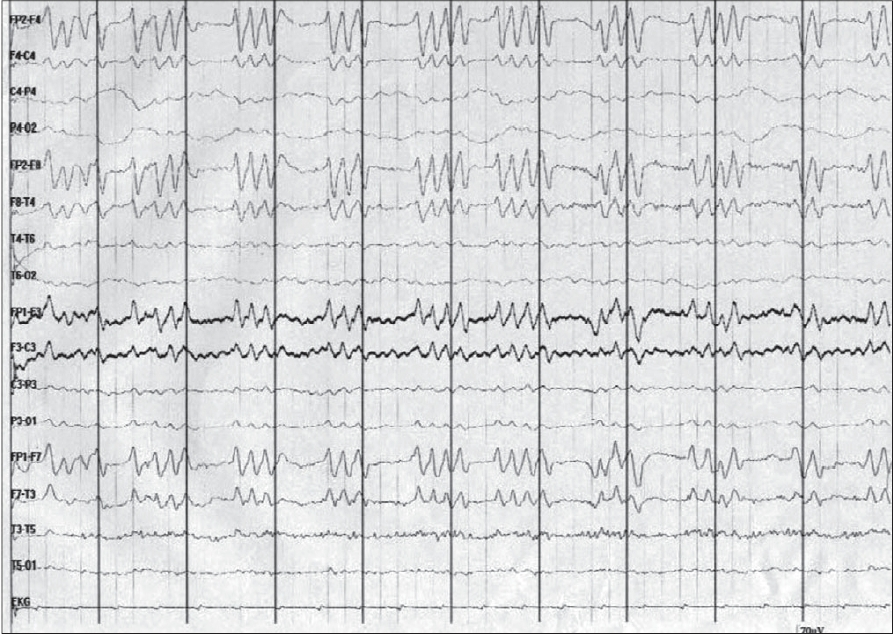 Figure 1: EEG showing periodic paroxysms of sharp wave triplets and quadruplets with attenuation of activity between the complexes
