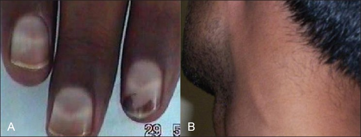 Figure 1: (A) Photograph of a patient with arsenic neuropathy shows Mee's line (B) photograph showing great auricular nerve thickening