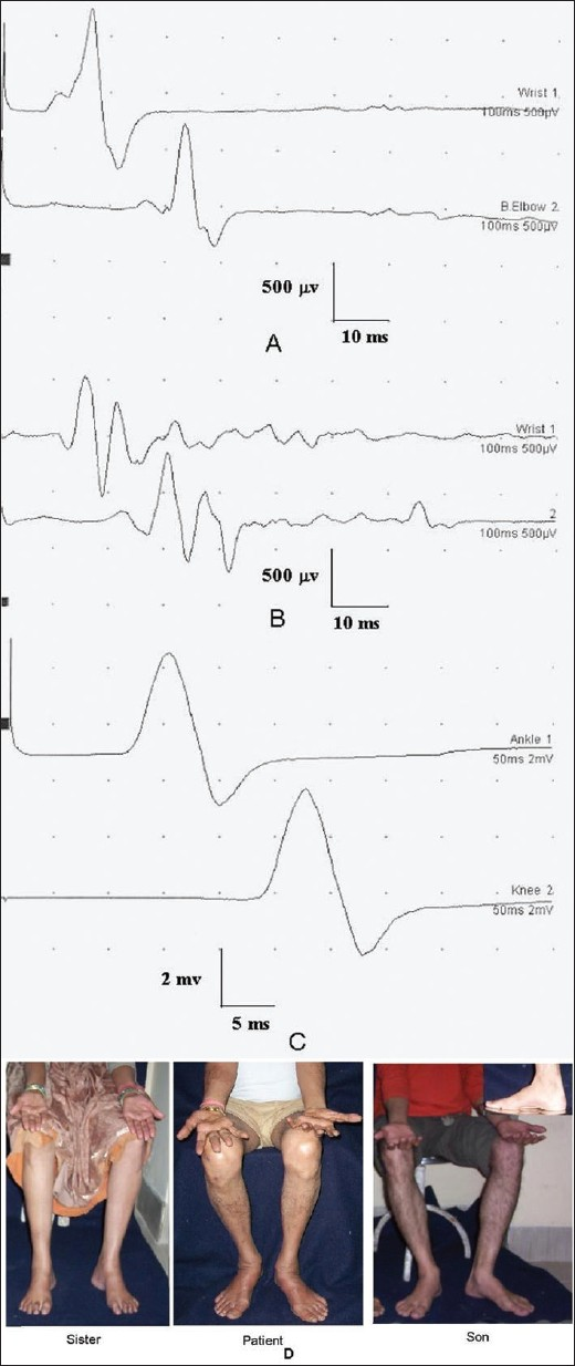 Figure 3: Nerve conduction study of a 52-year-old male with hereditary motor sensory neuropathy showing slowing of conduction velocity and reduced CMAP in (A) ulnar (16.8 m/s; 0.9 mV and 0.8) and median (22 m/s; 0.5 and 0.6 mv) motor conductions. His peroneal and sural conductions were unrecordable. (C) Peroneal conduction study of his son who was asymptomatic showed slowing of conduction velocity (23.6 m/s). (D) Photograph of the patient and his sister and son suggesting AD in heritance. There was wasting and weakness of small muscles of hands and feet of the patient and high-arched feet of the sister and son (inset)