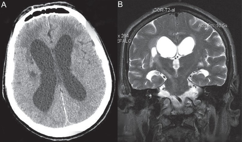 Figure 2: Ischemic stroke in a patient with Cryptococcus neoformans meningitis. CT scan (A) and brain MRI T2-weighted sequence (B)