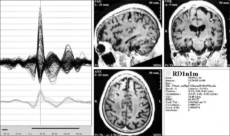 Figure 5 :Magnetic evoked response to sensory stimulation of the right thumb with an air driven pressure pulse tapper that taps the thumb surface. Evoked response localizes to the anterior wall of the post-central gyrus. The panel on the left shows the evoked response and the panel on the right shows the ECD localization at the point the cursor has been placed
