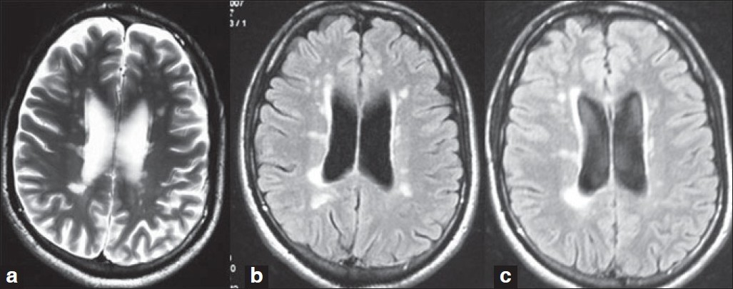 Figure 1 : (a) Baseline (2006) MRI brain of one our patients with RRMS before starting IFN β (b) Follow up (2007) MRI brain of patient showing no fresh lesion (c) Follow up (2008) MRI brain of patient showing no fresh lesion