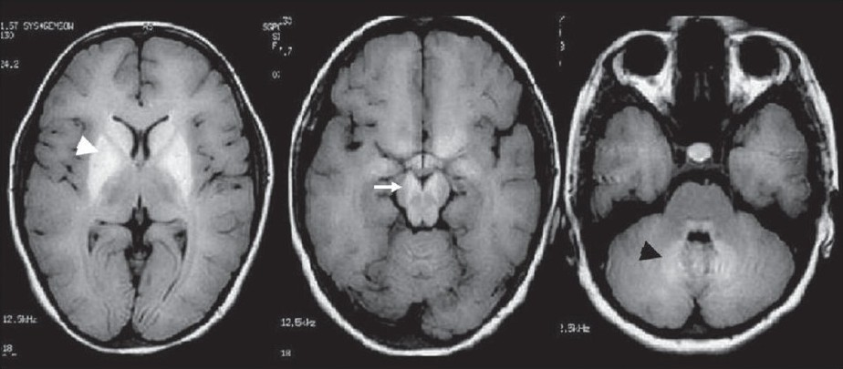 Figure 1: Cranial MRI on T1 sequence of the patient #3 with pseudohypoparathyroidism shows hyperintensity in the striatopallidal (white arrow head), midbrain (white arrow) and pontocerebellar region (black arrow head) whose CT scan was normal