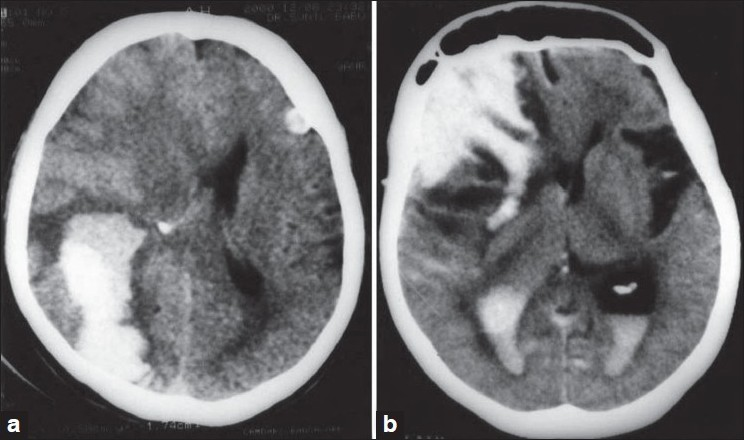 Figure 1: CT scans demonstrating (a) Case 1: Acute lobar hematoma in the right occipital lobe. There is evidence of mild perilesional edema and mass effect with effacement of ipsilateral lateral ventricle and midline shift. Another small cortical bleed is seen in the left frontal lobe. (b) Case 2: Acute right frontal hematoma with intraventricular extension. Perilesional edema is noted with midline shift