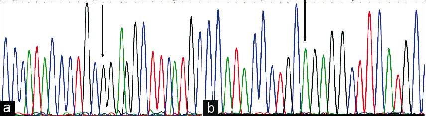 Figure 1: Electropherogram showing a normal sequence (a) and the homozygous G>A substitution of the <i>CLCN1</i> gene causing the Gly482Arg amino-acid change in the Clc-1 protein