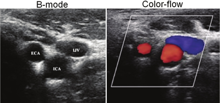Figure 1: Transverse B-mode and color-flow imaging of carotid artery obtained at the level of carotid bifurcation into internal carotid artery (ICA) and external carotid artery (ECA). Internal jugular vein (IJV) is seen overlying the two. Note the difference in the colors - both ECA and ICA show positive Doppler frequency shift (red), while IJV shows negative Doppler frequency shift (blue)