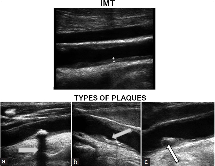 Figure 4: Intima-media thickness (IMT) measurement in common carotid artery (CCA) and various types of plaques. IMT is measured on the far wall in distal CCA. Panel (a) shows a heterogeneous plaque with a shadow artifact (arrow). Panel (b) shows a homogeneous plaque with a possible ulcerated surface. A homogeneous plaque is seen in panel (c) with a dark area within, suggesting intraplaque hemorrhage