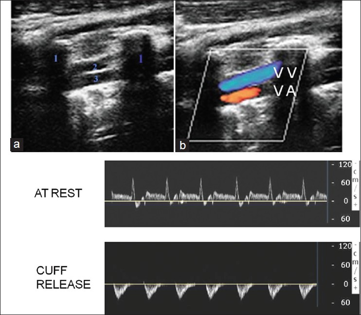 Figure 5: Appearance of vertebral arteries (VAs) on longitudinal imaging. VA runs in between the transverse processes of VAs. Vertebral vein runs parallel to the VA. Lower panels show hyperaemia-ischemia cuff test in a patient with subclavian steal syndrome. Spectra obtained at rest show