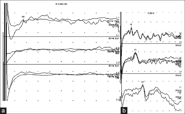 Figure 3: Somatosensory - evoked potential study (a): Trace 1 shows low amplitude but present Erbs point potential. Cervical and cortical responses are not obtained (traces 2 and 3)(b) Normal Erbs point, cervical cord, and cortical responses
