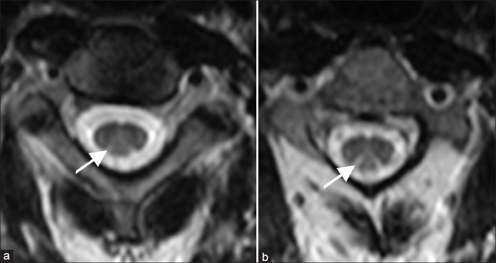 Spinal MR imaging in Vitamin B12 deficiency: Case series ... B12 Deficiency Spinal Cord