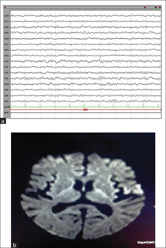 Figure 1: Normal electroencephalogram (a). Magnetic resonance imaging of brain - diffusion weighted axial image showed restriction in left frontal opercular cortex suggesting acute infarct (b)