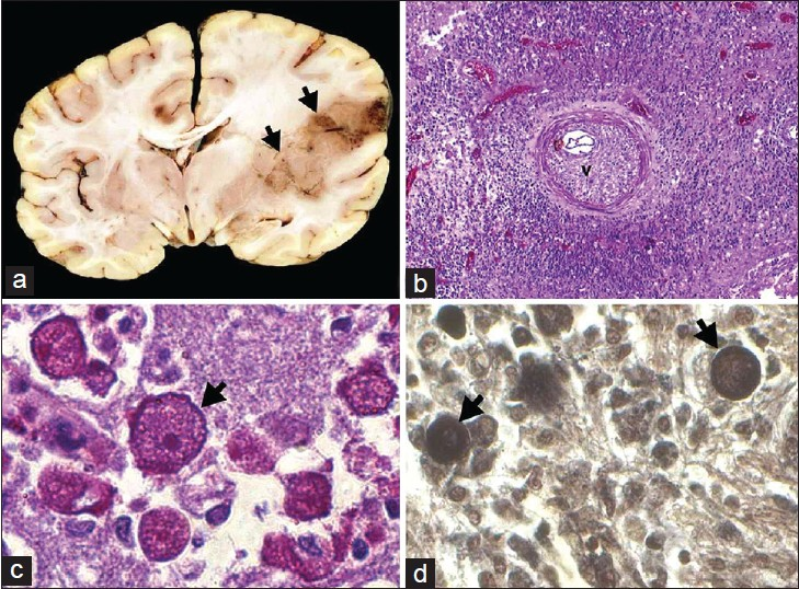Figure 3: Large coalescing necrotizing hemorrhagic lesions are seen involving the insular cortex and putamen with extensive perilesional edema with compression of ipsilateral ventricle (a) on histology, dense vasculitis and inflammation is noted (b) large trophozoite forms with prominent nucleoli (c) is seen aggregating around vessels in addition to thick walled cyst forms of acanthamoeba (d)