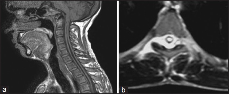 Figure 2: (a) T1-weighted (T1W) sagittal magnetic resonance (MR) image of the cervicodorsal spine showing syringohydromyelia, craniovertebral junction anomalies and downward beaking of the cerebellar tonsil. (b) T2W axial MR image of the cervical spine showing widened central canal in the cord suggestive of syringohydromyelia