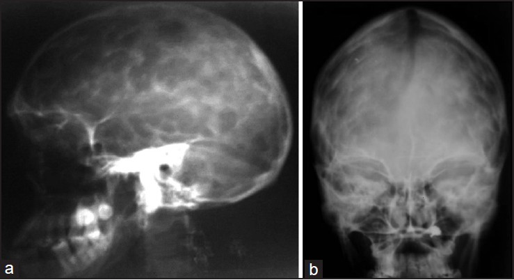 Figure 2: X-ray of the skull lateral (a) and frontal (b) view shows prominent convolutional markings and closure of cranial sutures. The frontal paranasal sinuses are hypoplastic