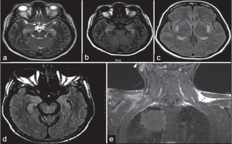 Limbic Encephalitis Clinical Spectrum And Long Term Outcome From