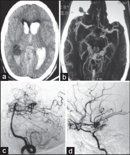 Figure 2: (a) CT head showing pivh. (b) CT angiography showing bilateral posterior basal moyamoya. (c) DSA (left vertebral artery injection) lateral view showing moyamoya network at posterior cerebral artery. (d) DSA (right ica injection) revealing supraclinoid ICA stenosis with classical