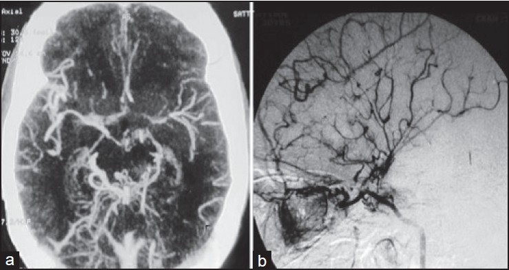 Figure 4: (a) CT angio showing bilateral proximal mca and aca narrowing with extensive posterior basal (collaterals) moyamoya. (b) DSA lateral view (left ICA injection) showing leptomeningeal collaterals suggestive of vault moyamoya along with basal as well as ethmoidal moyamoya. DSA = digital subtraction angiography, ICA = internal carotid artery, MCA = middle cerebral artery, ACA = anterior cerebral artery)