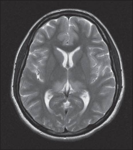 Figure 2: MRI T2-weighted axial image of the brain showing symmetrical hyperintensity in bilateral pulvinar nucluei of the thalamus