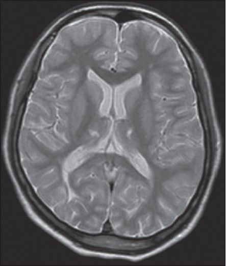Figure 3: T2 weight magnetic resonance imaging (MRI) of a 16-year-old girl who had a history of high grade fever, with seizures associated with unconsciousness 10 years back, who later presented with upper limb dystonia and choreoathetoid movements years. MRI shows hyperintensities in bilateral thalami