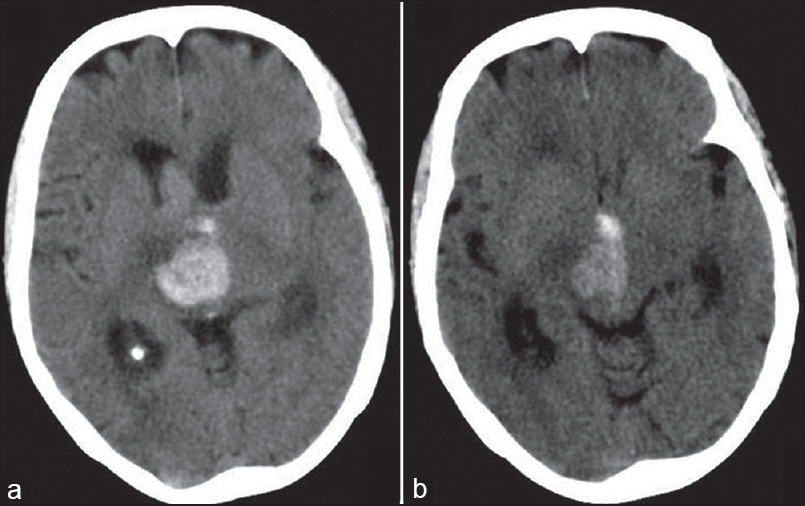 Figure 3: Computerized tomographic scan (a, b) of the patient six hours after thrombolysis showing brainstem and thalamic hematoma with mild hydrocephalus