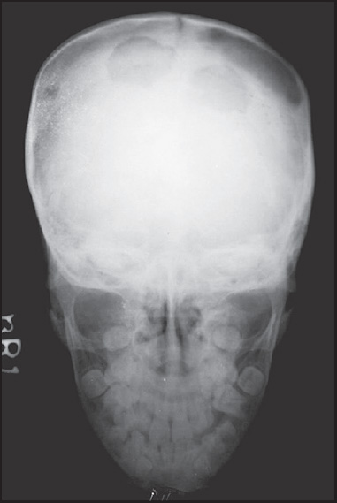 Figure 6: A 12-year-old male presenting with pancytopenia in a case of histiocytosis. Skull AP radiograph shows multiple lytic lesions with irregular geographic margins and no soft tissue component