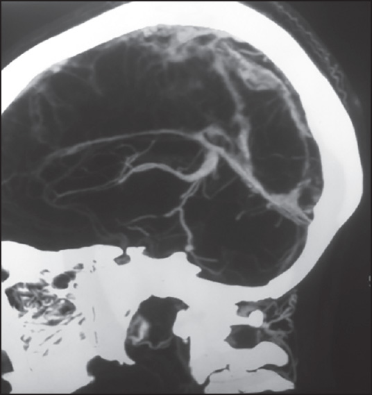 Figure 2: CT Venogram of brain showing patent deep venous system including inferior sagittal sinus, internal cerebral & basal veins, vein of Galen and straight sinus