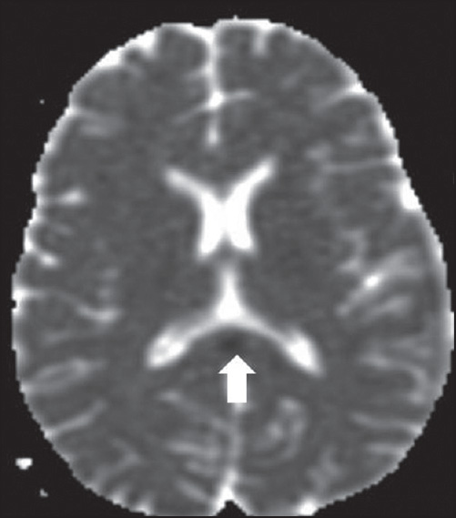 Figure 4: ADC mapping showing decreased apparent diffusion co-efficient (white arrow)