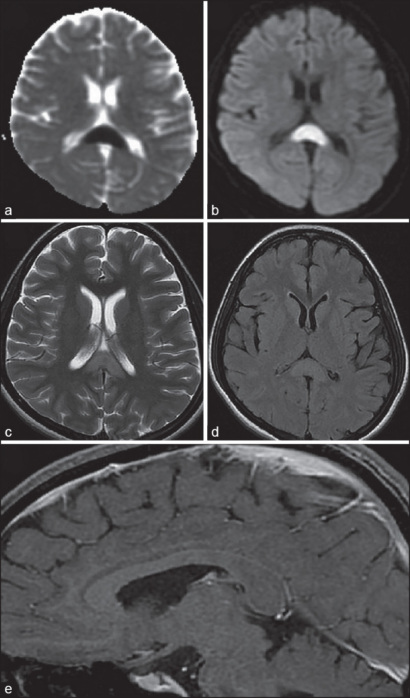 Figure 1: MRI of Brain showing low ADC value (a) and diffusion restriction (b) in splenium of corpus callosum with hyperintensity on axial T2 (c) and FLAIR (d) sequences. No enhancement noted in post gadolinium T1 sagittal image (e)