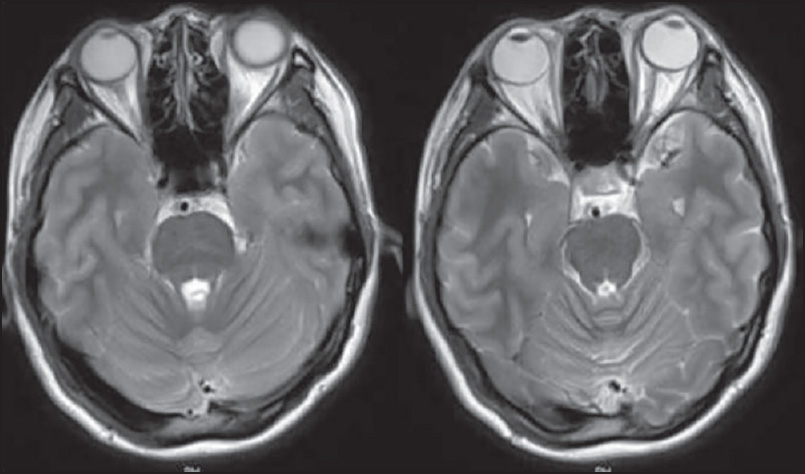 Figure 2: Two consecutive axial T2-weighted cuts of pons after 2 weeks of MRI in Figure 1. Note the complete resolution of the pontine hyperintensity