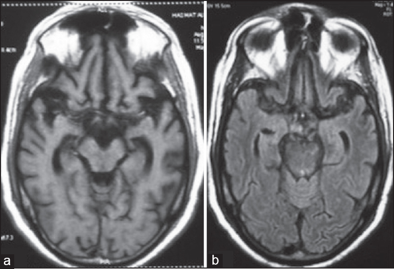 Figure 1: Magnetic resonance imaging of brain is suggestive of fronto-temporal atrophy on T1WI (a) and fl uid attenuated inversion recovery (FLAIR) (b) consistent with a diagnosis of fronto-temporal dementia