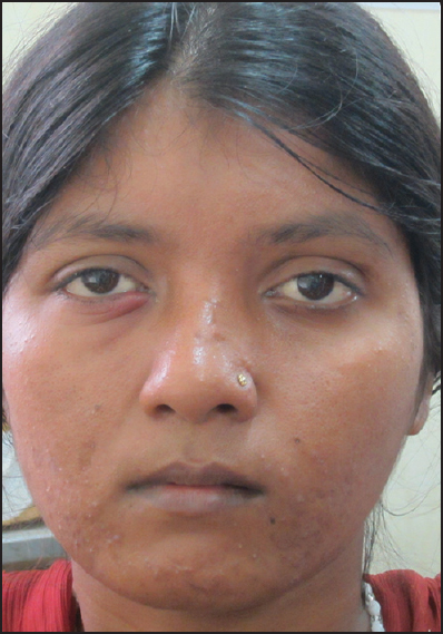 Figure 1: Photograph of the patient showing atrophy of her left face with slight deviation of mouth and nose toward left side