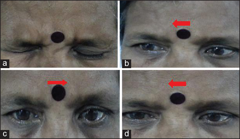 Figure 1: (a) Weakness of left eye closure; (b) Right eye abduction nystagmus; (c) Left horizontal gaze palsy (impaired left eye abduction and right eye adduction); and (d) Right eye adduction paresis