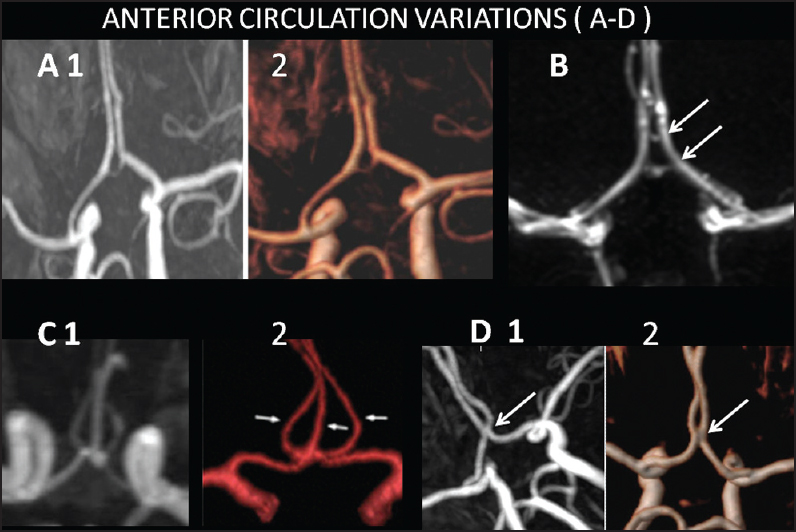 Magnetic Resonance Angiographic Evaluation Of Circle Of Willis A