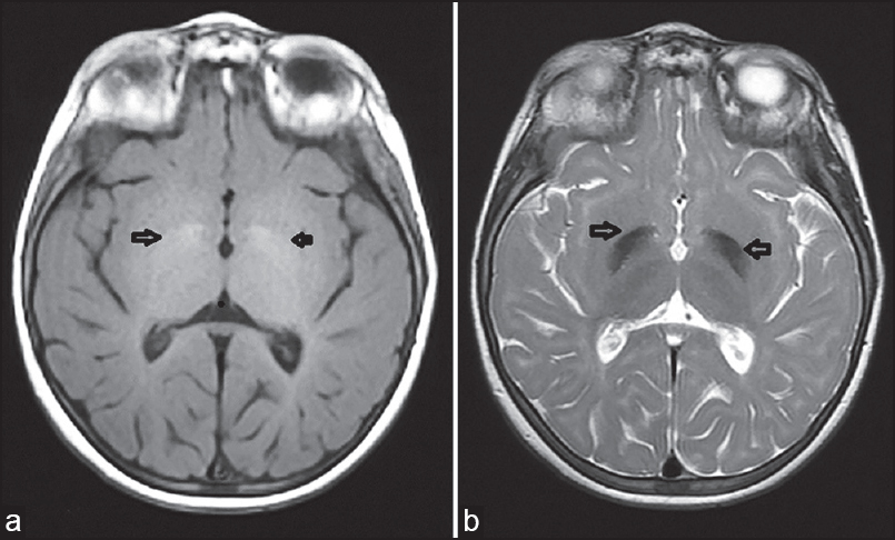Figure 1: Cranial MRI (magnetic resonance imaging), findings of our patient: (a) Bilateral globus pallidus hyperintensity signaling on T1-weighted imaging; and (b) bilateral globus pallidus hypointensity signaling on T2-weighted imaging. MRI = Magnetic resonance imaging