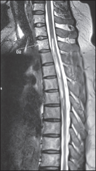 longitudinally extensive transverse myelitis patients Longitudinally extensive transverse myelitis (letm) is a neurological condition characterised by a contiguous inflammatory lesion of the spinal cord letm is often associated with the autoimmune central nervous system disease neuromyelitis optica (nmo) and rarely with multiple sclerosis.