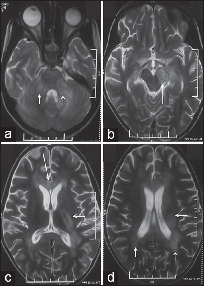 Figure 3: T2-weighted axial MRIbrain at multiple levels showing multifocal bilateral hyperintense lesions involving bilateral brachium pontis (arrows in a), left cerebral peduncle (arrow in b), corpus callosum (long arrow in c), left internal capsule (short arrow in c), and deep periventricular white matter (arrows in d)