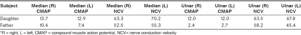 Table 1: Median and ulnar nerve conduction velocity (NCV) and compound muscle action potential (CMAP) amplitude in daughter and father