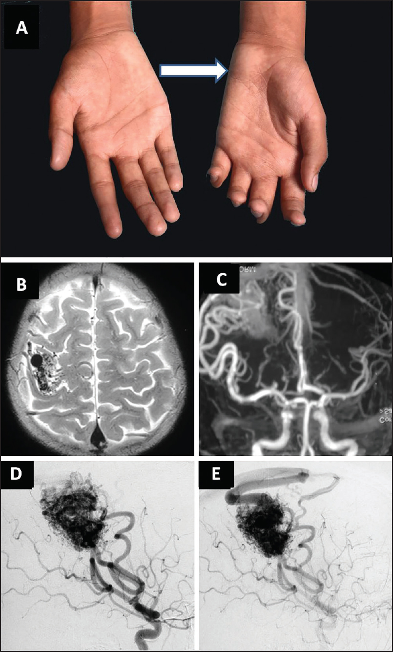 Figure 1: Showing disproportionate wasting of the hypothenar eminence of left hand with partial clawing (a) Axial T2 weighted (b) and contrast enhanced magnetic resonance angiography employing the time of flight (TOF) method (c) Reveals abnormal flow voids in the right frontal lobe suggestive of AVM. Digital subtraction angiography (d and e) Better demonstrates the AVM nidus with arterial feeders from the middle cerebral artery (MCA) branches and venous drainage into the superior sagittal sinus