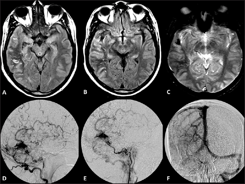 Figure 2: (a and b) Axial FLAIR MR images showing subcortical white matter T2 hypointensity in right parietotemporal lobe (c) Corresponding GRE image shows subtle blooming (d and e) Right ECA angiogram showing right transverse dAVF with venous reflux into superficial middle cerebral vein (f) Right proximal and distal transverse sinus occluded. Left transverse sinus patent