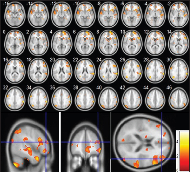 Juvenile myoclonic epilepsy with frontal executive