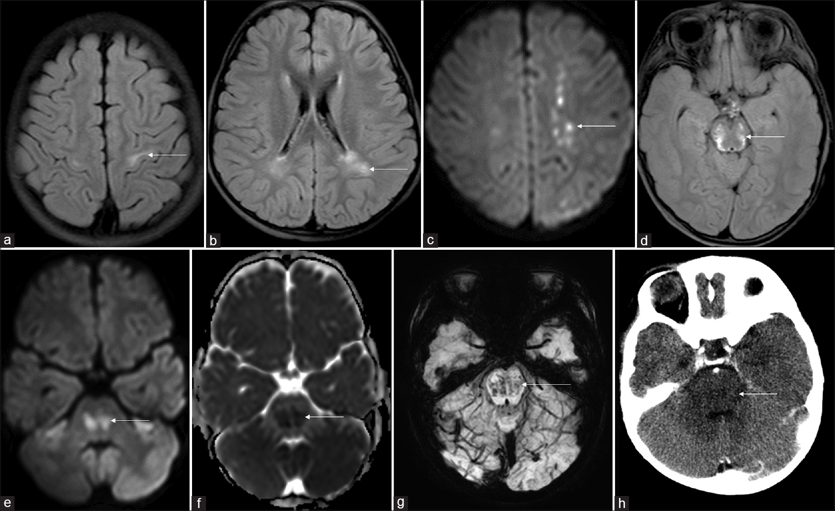 Figure 1: Magnetic resonance imaging fluid-attenuated inversion recovery axial images (a and b) bilateral white matter hyperintensities in the precentral gyrus and posterior periventricular region. Diffusion-weighted image (c) multiple foci of restriction in the left centrum semiovale. Fluid-attenuated inversion recovery axial image (d) symmetric midbrain hyperintensity. Diffusion-weighted image and apparent diffusion coefficient image at pontine level (e and f) restricted diffusion. Susceptibility-weighted image (g) hypointense foci in pons suggestive of bleed. Computerized tomography brain (h) hypodensity and swelling of the pons