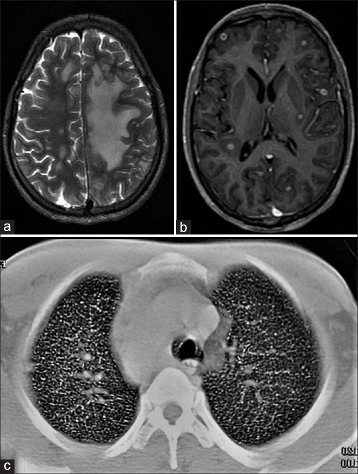 Figure 1: Axial section of magnetic resonance imaging of the brain shows polyfocal hyperintense perilesional changes on T2-weighted, (a) sequence and multiple small ring-enhancing lesions on spoiled gradient echo -gadolinium sequence, (b) and an axial computed tomography-thorax section with contrast shows a military pattern in the lung parenchyma (c)