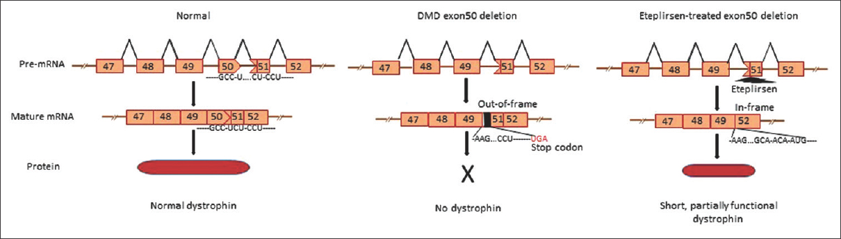 Figure 2: Exon-skipping eteplirsen ASO recognizes DMD exon 51 in pre-mRNA and converts out-of-frame into in-frame smaller transcript of dystrophin. DMD, Duchenne muscular dystrophy; mRNA, messenger RNA; ASO, antisense oligonucleotide