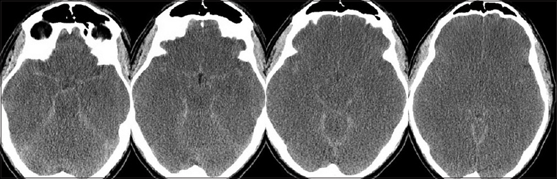 neuroimaging findings in late infantile gm1 Gm1 gangliosidosis, late infantile onset dystonia, and t2 hypointensity  gm1 gangliosidosis is a rare disease with an inci-  morquio phenotypes [1-3] neuroimaging in gm1 gan-gliosidosis has been reported in a limited number of patients [2,4-6.