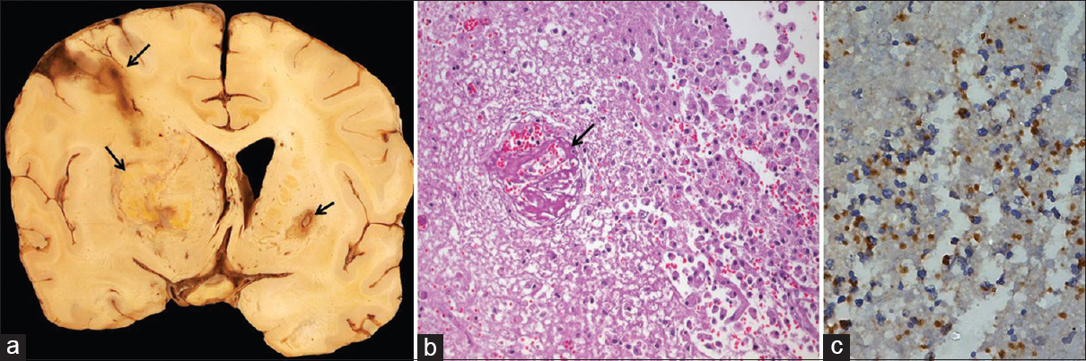 Figure 1: Coronal slice of brain shows a large necrotic lesion in left basal ganglia and smaller hemorrhagic lesions in left frontal and right putamen (arrows, a). Microscopy from the lesions shows necrotizing inflammation with thrombosis of vessels (arrow, b). Immunohistochemistry demonstrates numerous small ruptured tachyzoites of <i>Toxoplasma gondii</i> in the lesion (c). [b: H and Ex Obj. 10, c: Immunohistochemistry with p30 antigen of <i>Toxoplasma gondii</i> x Obj. 20]