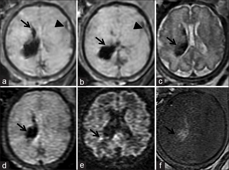 Figure 3: Axial images of GRE (a and b), Half Fourier acquisition single shot turbo spin echo (c), bo diffusion-weighted imaging (d) and T1 TURBO FLASH (f) sequences depicting grade 2 germinal matrix- intraventricular early subacute hemorrhage (arrow) on the right side. Thin rim of subarachnoid hemorrhage is seen in left frontal sulcal spaces (arrowhead) on GRE sequence. Less volume of hemorrhage (arrow) is depicted in axial b800 diffusion-weighted imaging images (e)